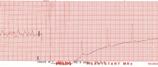 V fib and shock at 200 joules, and return of spontaneous circulation (ROSC) ECG