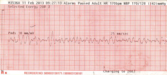 ECG Lapse back into v fib, shock at 200 joules, conversion, lapse back into v fib