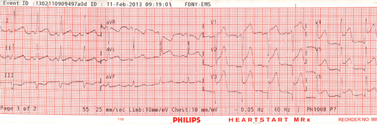 12-lead ECG after conversion and sustained ROSC