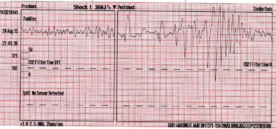 First 360 J defibrillation by ALS at 21:03:39 minutes with no conversion.