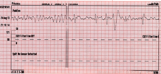 Seventh EMS defibrillation at 21:18:14 minutes and return of spontaneous circulation (ROSC) at 21:19:19 minutes.