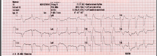 12-lead ECG after ROSC is maintained at 21:21:50 minutes.