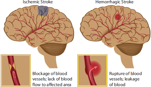 Timely Prehospital Management of Stroke Victims Crucial ...
