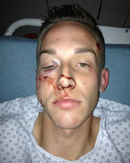 This 26-year-old male patient received a single, unexpected blow to the right face by the assailant's fist. He was immobilized and taken to a local hospital for treatment. The patient suffered significant structural injuries to his face that included: several fractures to the right maxillary sinuses, right orbital floor fracture, displaced right lateral orbital wall fracture, right zygomatic arch fracture, right intraorbital emphysema, right facial subcutaneous emphysema, right maxillary sinus hemorrhage, and right periorbital hematoma. The patient was later discharged to the care of a tertiary Level 1 trauma center for a multidisciplinary surgical repair of his injuries. Photo courtesy A. Dickinson