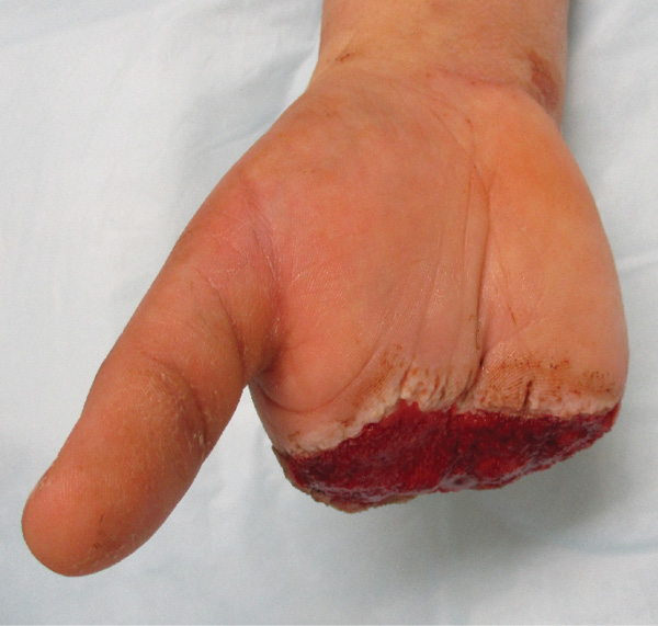 Postoperative photo of hand. Photo courtesy William Ross, MD